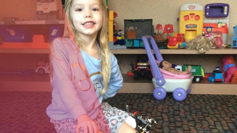 padres rompen veces 300 la pierna de su hija