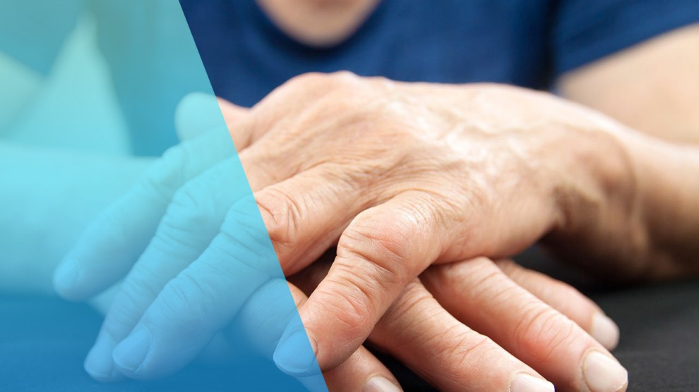 tiene cura la artritis reumatoide