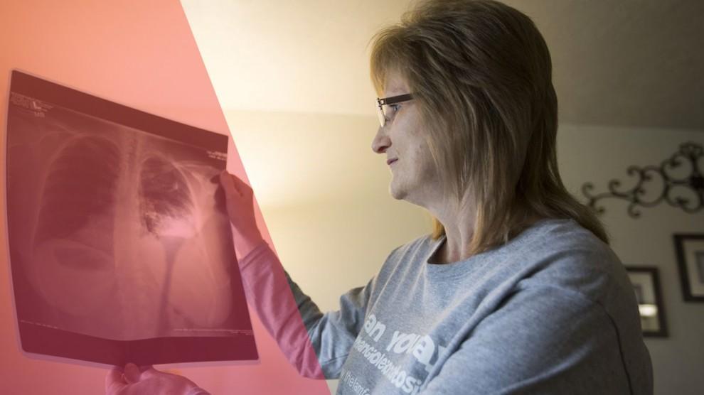 La lucha contra la linfangioleiomiomatosis es ayudar al prójimo