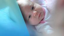 Así es el nuevo procedimiento para detectar malformaciones craneales en bebés