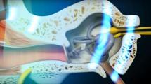 Curso de cirugía de implante de oído medio