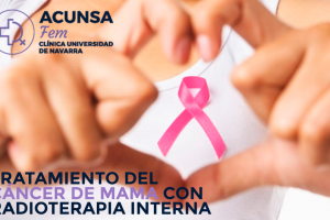 radioterapia-interna-blog-acunsa