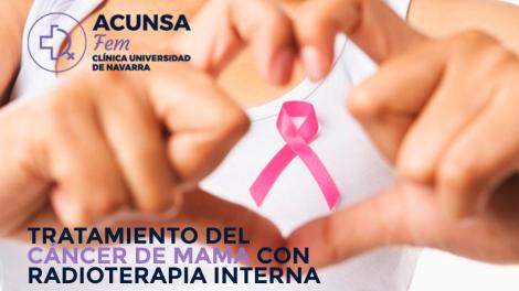 radioterapia-interna-blog-acunsa
