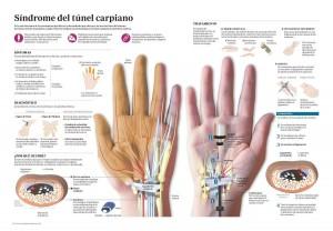 tunel-carpiano-acunsa-clinica-universidad-de-navarra-muñeca-mano-tratamiento-infografia
