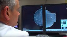 mamografo-cun