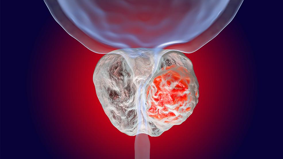 biopsia por fusion prostata