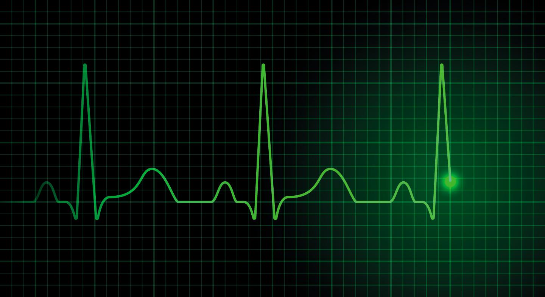 Cuales son los síntomas de las arritmias cardiacas? - ACUNSA