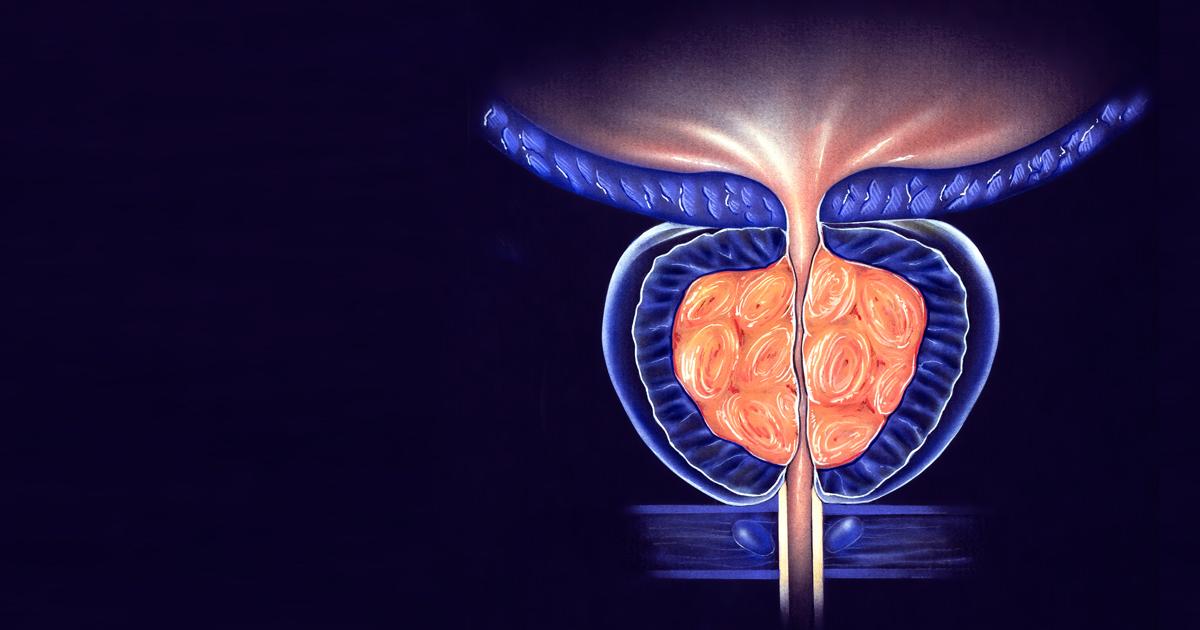 tratamiento no farmacológico de la prostatitis aguda